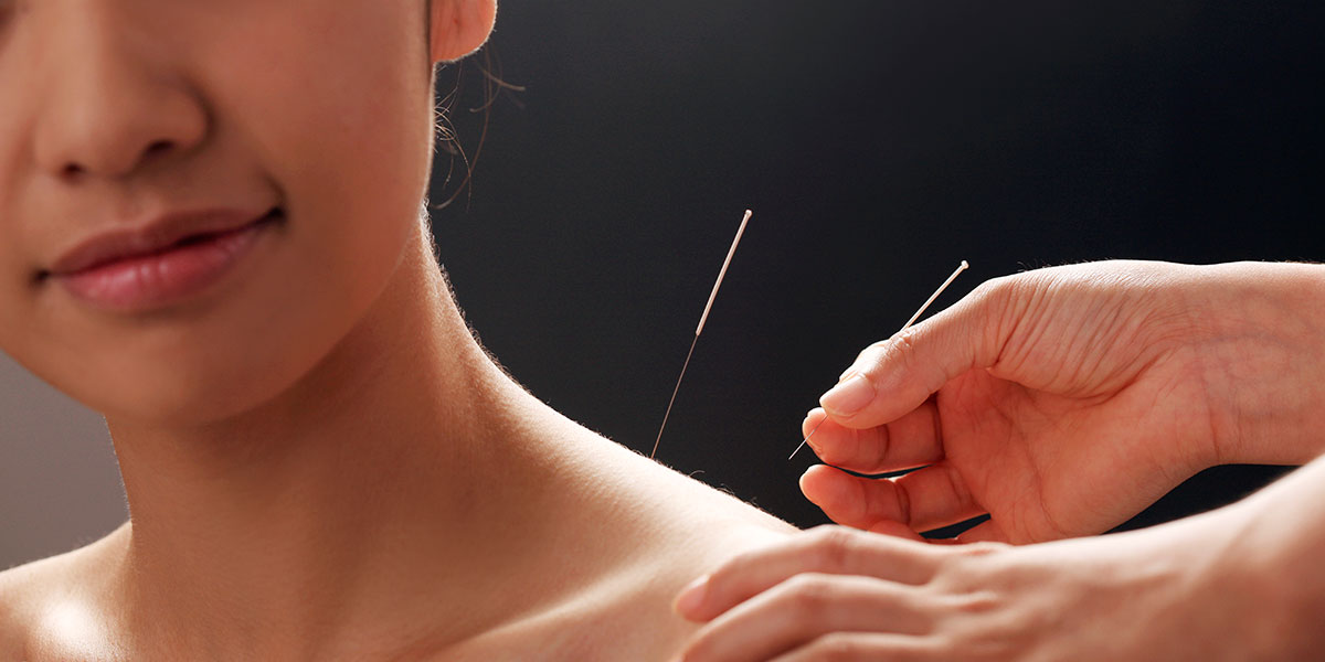 Acupuncture Photos - 2