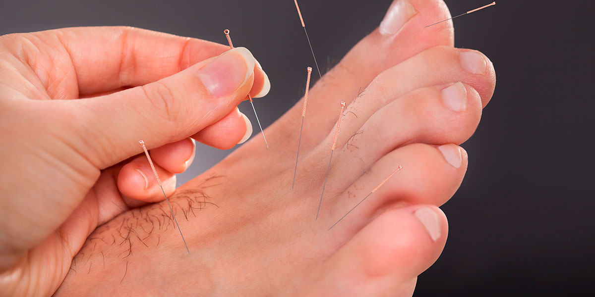 Acupuncture Photos - 3