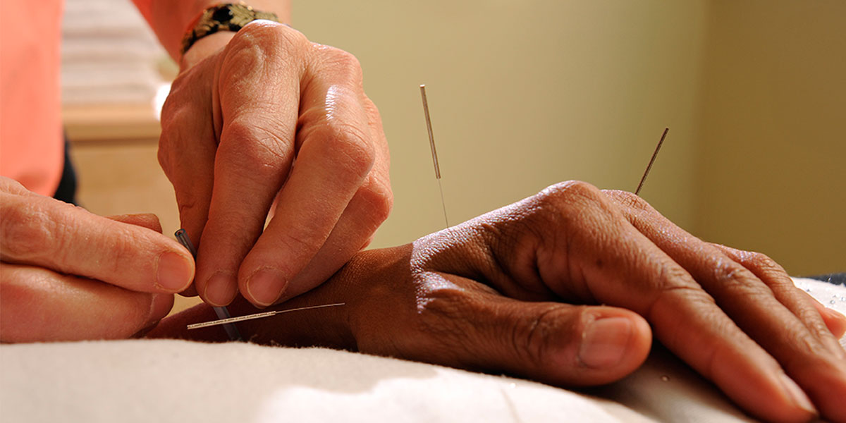 Acupuncture Photos - 5