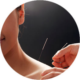 Acupuncture by Jan Edwards at Essential Wellness Centre